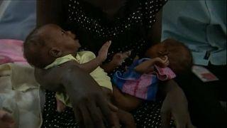 Os riscos dos bebés recém-nascidos