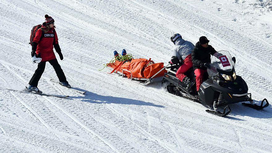 Kết quả hình ảnh cho Broken bones from winter sports