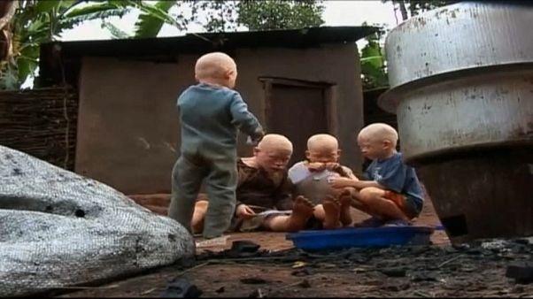 Albinos vítimas de perseguição em Moçambique