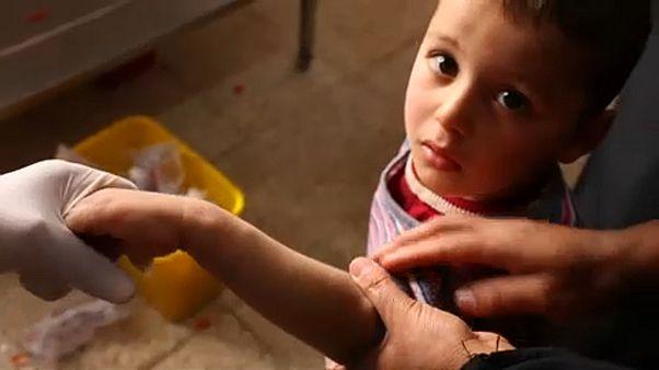 Csúnya bőrfekély-járvány Irakban