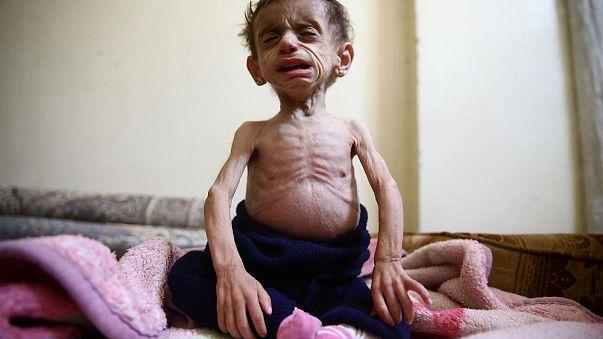 UNICEF: Suriye'de bu yıl en az bin çocuk öldürüldü