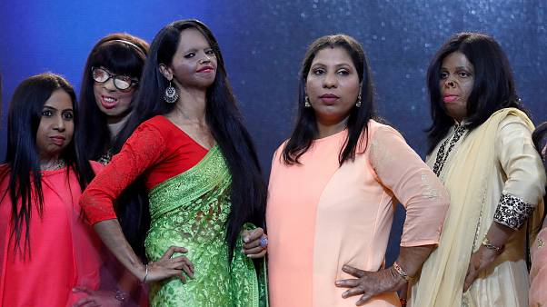 Acid attack victims hit catwalk for International Women's Day