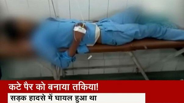 مريض في الهند وضعت ساقة المقطوعة تحت رأسه كوسادة