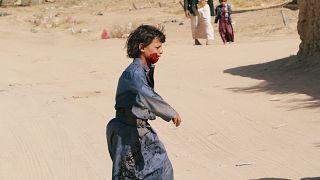 أطفال اليمن يعانون الأمرّين جراء الحرب الدائرة منذ أكثر من عامين