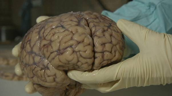Örök életet ígér egy start-up azoknak, akik digitalizáltatják az agyukat