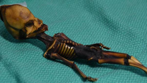 Mystery solved: alien-like skeleton found in Chile 'was human'