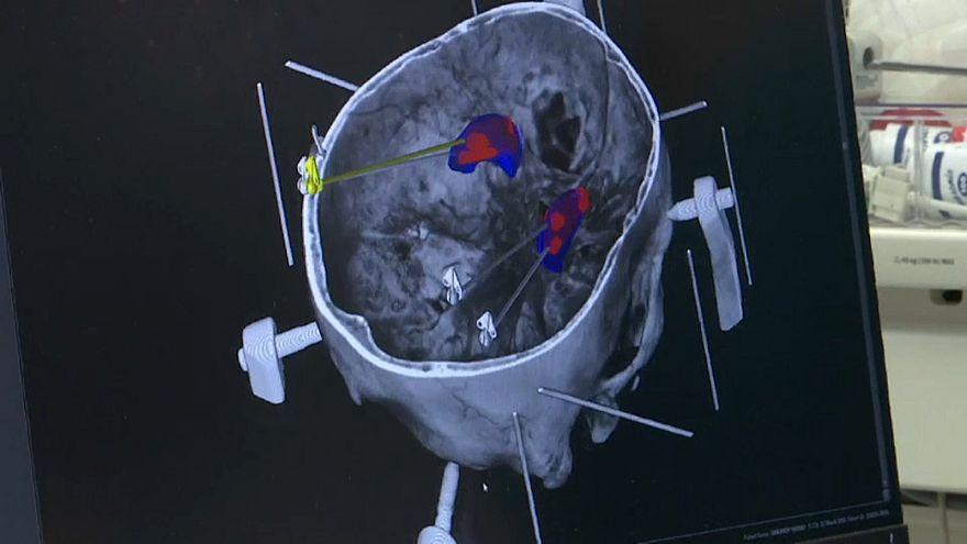 عملية جراحية للدماغ قام بها روبوت في فنلندا