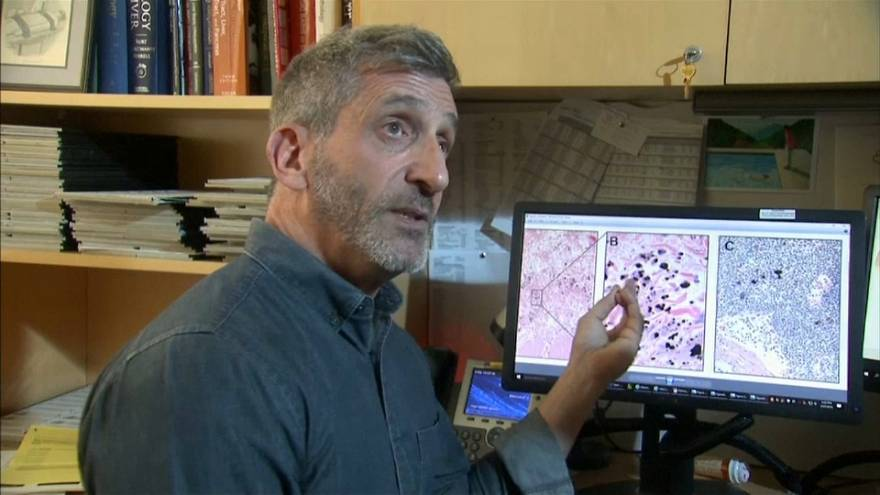 Intersticio: el nuevo órgano que puede ayudar a entender la propagación del cáncer