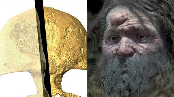 بازسازی چهرۀ انسان کرومانیون؛ دلیل وجود حفره در جمجمه کشف شد