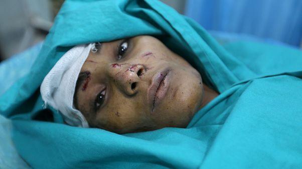 L'appel de l'ONU pour aider un Yémen à l'agonie
