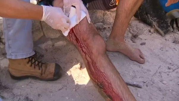 رياضي كاد أن يفقد ساقه بسبب قرش شرس