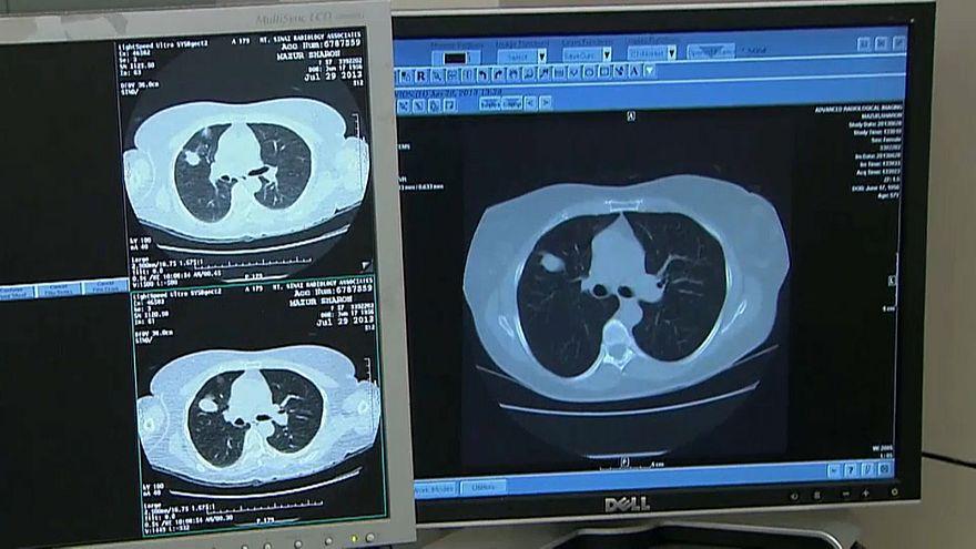 Kanser tedavisinde yeni yöntemlerden olumlu sonuç
