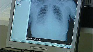Nuevo tratamiento contra el cáncer de pulmón