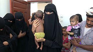 شاهد: سوء التغذية يفتك بأطفال اليمن
