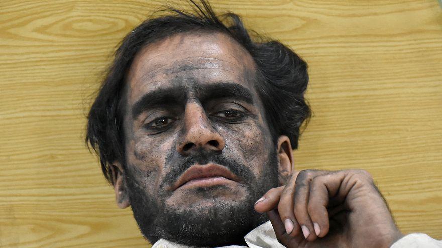 Pakistan, tragica esplosione in miniera