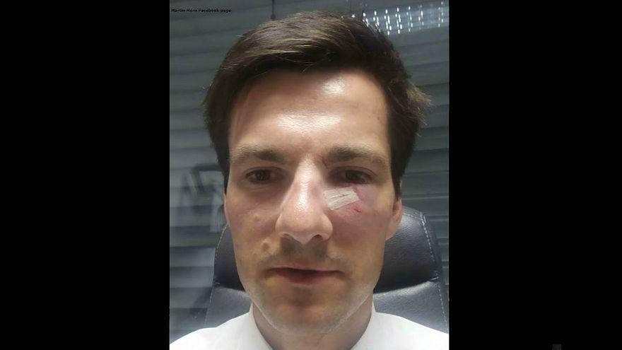 عمدة فريبورغ الجديد يفوز في الانتخابات ويخسر سنا خلال تعرضه لهجوم