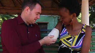 زواج امرأة بعد أيام من التهام تمساح ذراعها