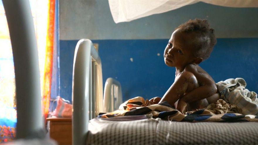 Kasaï : des enfants malnutris par centaines de milliers