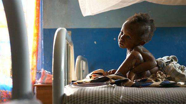 """Unicef: Congo, """"oltre 700.000 bambini soffrono di malnutrizione"""""""