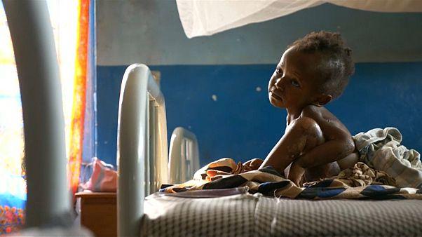 400.000 Kindern im Kongo droht der Hungertod