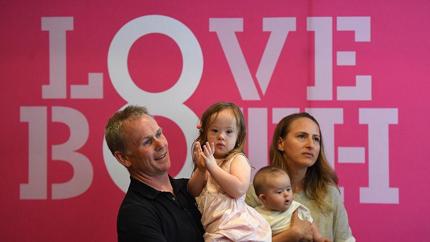 """Irland: Kritik an """"Instrumentalisierung"""" von Kindern mit Down-Syndrom"""