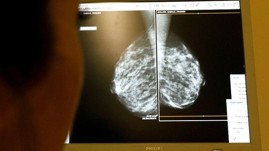 sreening mammography