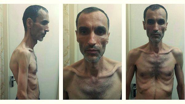 واکنشهای گسترده به انتشار تصاویر حمید بقایی پس از اعتصاب غذا