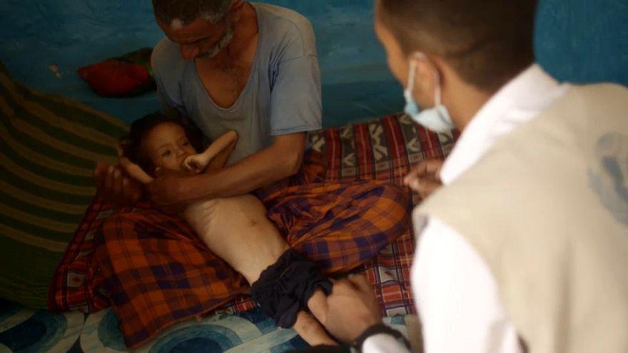 La dramática situación humanitaria del Yemen