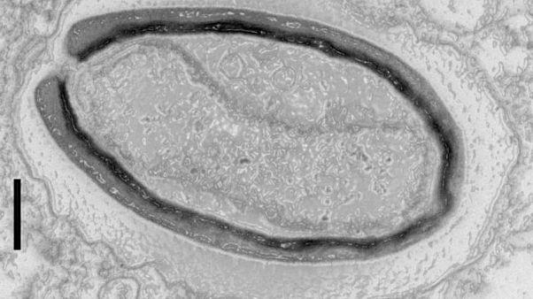 Evrime yeni bakış: Bilim adamlarının keşfettiği dev virüsler kendi genlerini yaratıyor