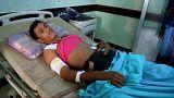 Sok civil sebesül meg Jemenben