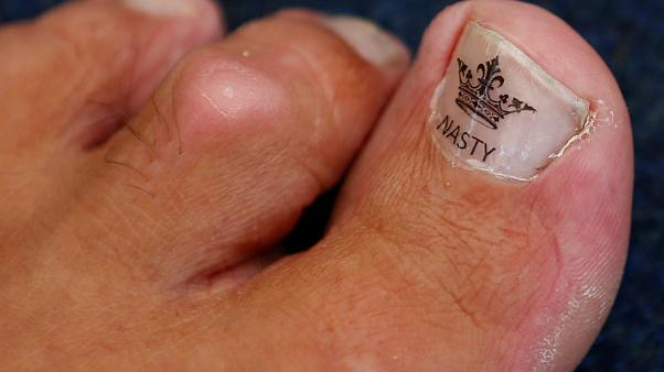"The toe of Alan ""Nasty"" Nash."