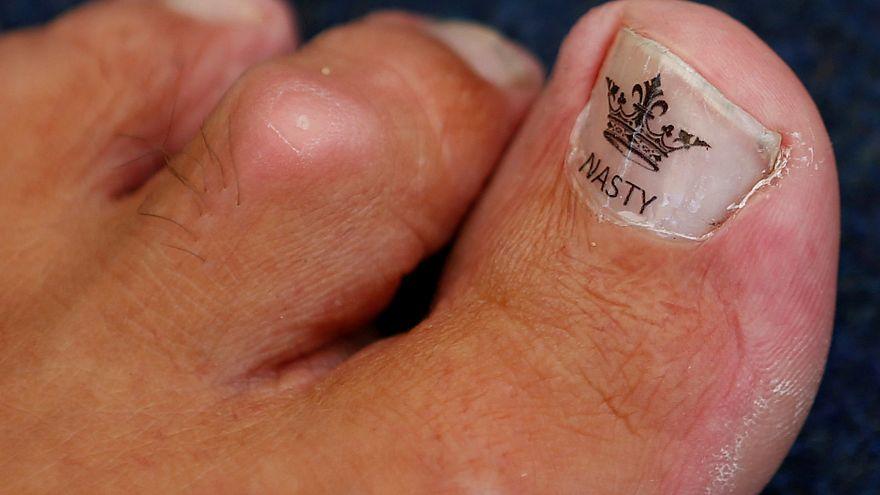 "The toe of Alan ""Nasty"" Nash."