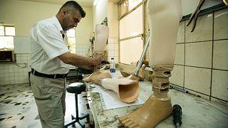 Depois do conflito, a recuperação dos amputados de Mossul