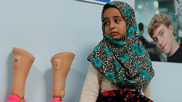 Konserve kutusundan protezleri Maya'ya yeni bir hayat sundu
