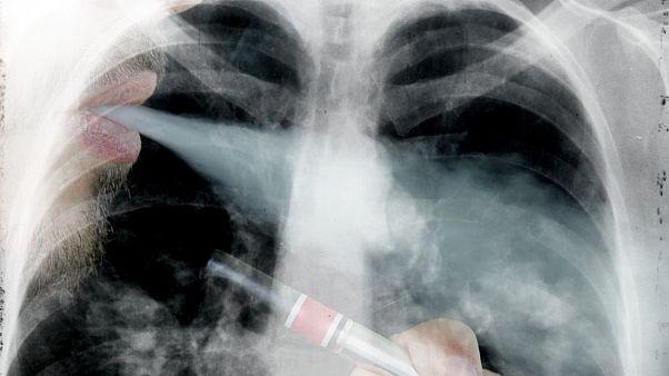 دراسة تظهر تأثير مدمّر للسجائر الألكترونية على الأوعية الدموية والقلب