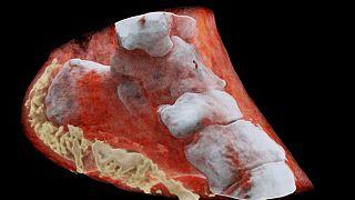 اشعه ایکس سه بعدی و رنکی
