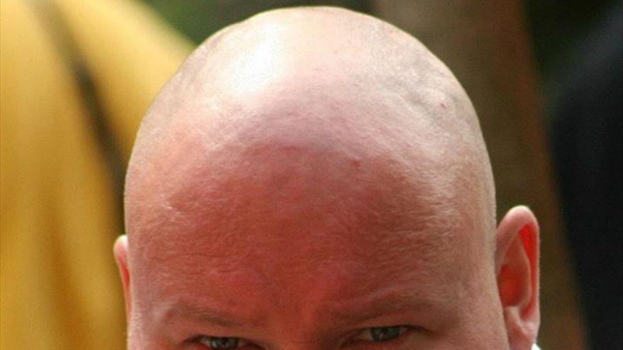 Cilt kırışıklığı ve saç dökülmesini tersine çevirecek buluş