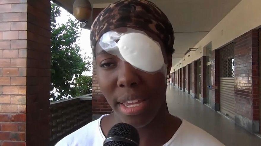 """Osakue: inchiesta, """"lesioni senza aggravante razziale"""""""