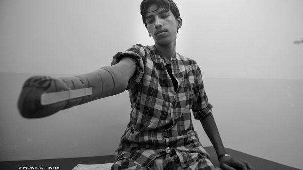 I ritratti dei sopravvissuti alla battaglia di Mosul e a tre anni di Isis