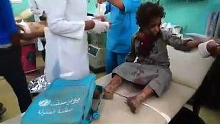 Επίθεση σε λεωφορείο με παιδιά στην Υεμένη