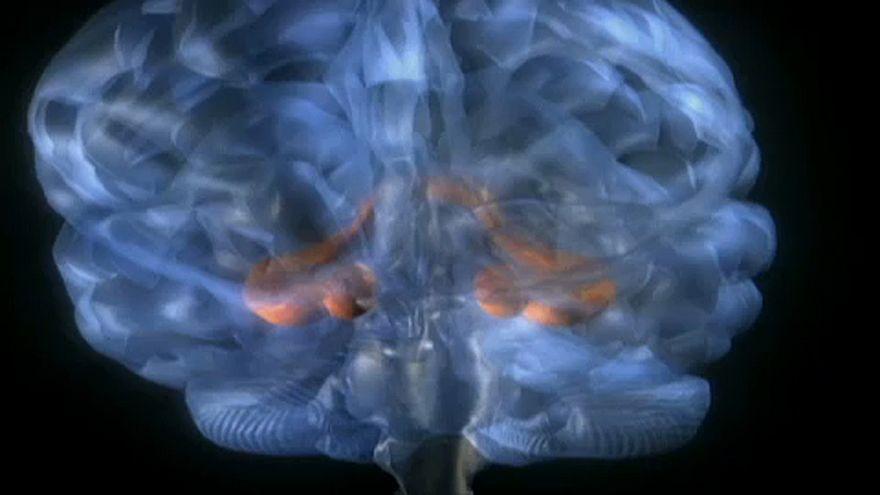 Új eljárás az epilepszia kezelésére