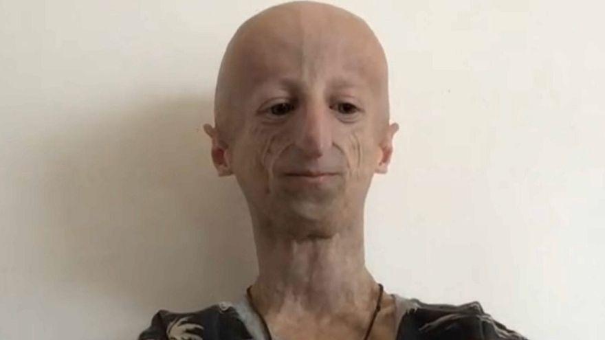 İki yaşında Progeria tanısı konulan Sammy hastalığı hakkında tez yazdı.