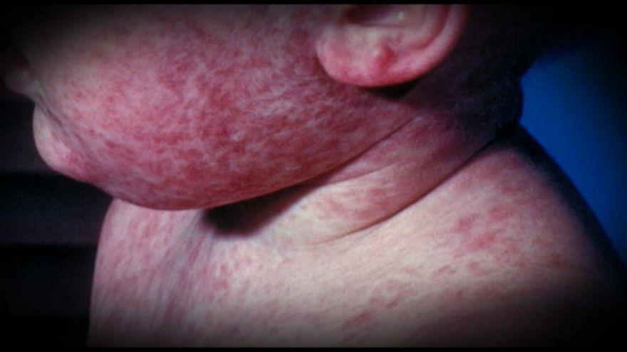 Número recorde de casos de sarampo na Europa