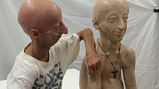 Sammy Basso: El italiano de 22 años que parece un anciano