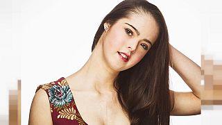 Marian Avila (21): Model mit Down Syndrom auf der New York Fashion Week