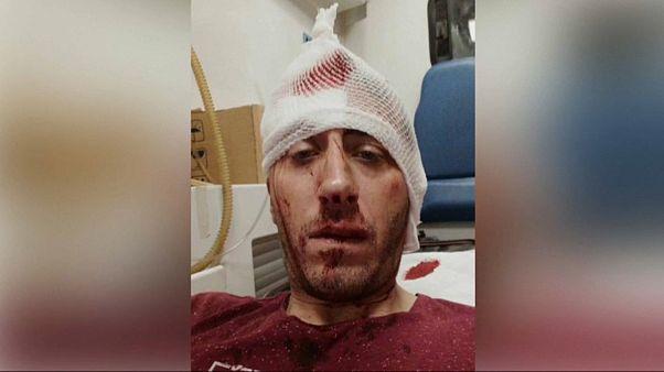 Nach Prügelattacke auf Reporter: Bosnische Journalisten demonstrieren