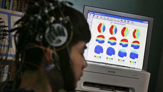Bizonyították: a kannabioid segít a pszichés betegek tüneteinek enyhítésében