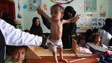"""آمال معلقة على """"جنيف"""" لإغاثة أطفال اليمن الذين فتكت بهم الحرب والفقر وسوء التغذية"""