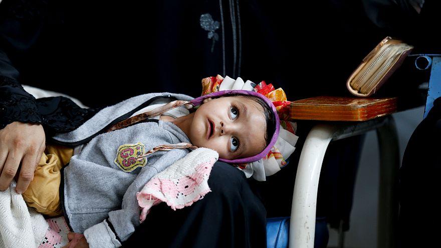 معاناة مرضى السرطان في اليمن... وجه آخر للحرب