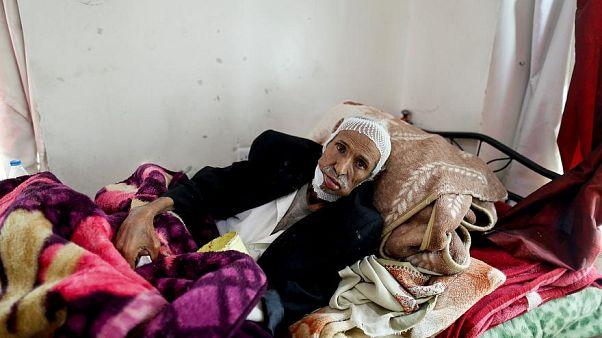 رنج بیماران سرطانی در بحبوحه جنگ یمن به روایت تصویر